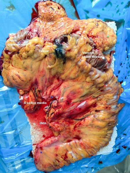 Figur 2: Preparat etter laparoskopisk CME utvidet venstresidig hemikolektomi pga ca coli i venstre colon transversum (colon sigmoideum også resisert for å få avsatt arteria mes. inferior (IMA) helt sentralt. A colica media avsatt sentralt. Disseksjon langs kurvatura major på ventrikkelen for å eksidere lymfeknuter langs a. gastroepiploica. SPOT markering distalt for tumor for å eksakt lokalisere tumor perioperativt.