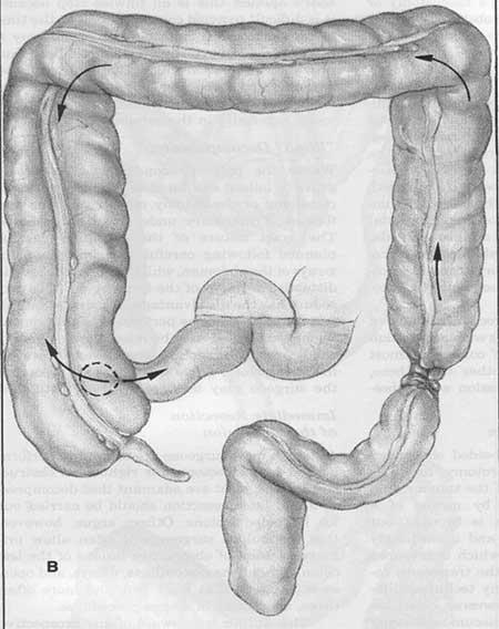 Figur 3. Colonileus med åpen ileocøkalklaff.