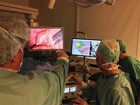 Bruk av 3D modell ved parenkymsparende leverkirurgi.Foto Rahul Kumar, Intervensjonssenteret, Rikshospitalet