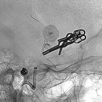 Figur 4. Røntgenbilde (single shot) tatt under endovaskulær anleggelse av stent. Stenten er i ferd med å bli lagt forbi residivert, tidligere klipset, aneurisme i bifurkaturen av venstre a. cerebri media. Bildet demonstrerer også coilmateriale i et tidligere coilet ACOM aneurisme.