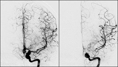 Figur 3: Samme pasient som over. Digitalt Subtraksjons Angiografi (DSA) hvor bildet til venstre er tatt umiddelbart før coiling av anuerysme i ve. carotissifong. Aneurysmet hadde blødd dagen før. Kontroll angio etter coiling viste normale kar distalt for aneurysmet. Bildet til høyre er tatt 11 dager etter SAB. Coilmaterialet kan ses delvis suprimert. Her ses uttalte karspasmer i distale a. carotis interna, A1 (a. cerebri anterior fram til ACOM) og M1 (a. cerebri media fram til bifurkaturen). Pas svarte godt på gjentatte lokale injeksjoner med Nimodipin fra a. carotis interna. I tillegg ble det gitt Nimodipin i.v.