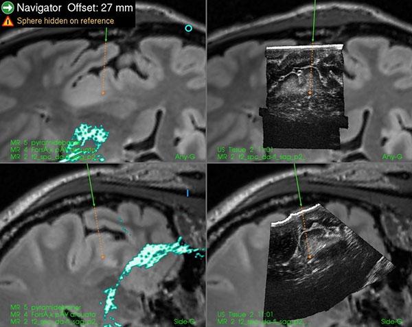 Figur 3. Intraoperativ avbilding med 3D ultralyd-bilder legger inn i navigasjonssystemet sammen med preoperative MR-data og brukes til å oppdatere de anatomiske kartene underveis i inngrepet samt for å kvalitetssikre reseksjonen (reseksjonskontroll).