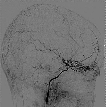 """Figur 2A. Pasient med MoyaMoya, tidligere stentet i ICA og med utbredte små """"korketrekker-kar"""" omkring carotis terminus intrakranielt."""