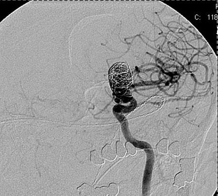 Figur 3A. Konvensjonell cerebral angiografi av pasient med tidligere endovaskulært coil-behandlet ICA aneurysme.