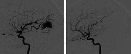 Figur 5. Til venstre er pasientens arteriovenøse malformasjon visualisert ved hjelp av cerebral angiografi ved behandlingstidspunktet mai 2009. Kontroll angiografi april 2011 viser at malformasjonen er lukket og ikke lenger synlig.