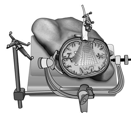Figur 2. 3D ultralyd opptak ved hjelp av en ultralyd probe hvor posisjonen hele tiden registreres. Proben tiltes eller forflyttes for å dekke det interessante området og de genererte 2D bildene brukes til å lage et 3D volum.