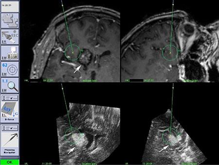 """Figur 3. Bilde av skjermen fra under operasjon av et cavernøst hemangiom (""""Dual anyplane""""). Det pekes på kanten av lesjonen. Unøyaktigheten i de preoperative MR bildene vises i øverste rad. Unøyaktigheten er på ca. 8 mm."""