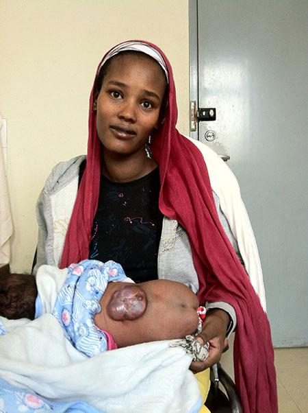 Medfødt ryggmargsbrokk. De fleste ryggmargsbrokk på poliklinikken er lukkede og sees hos barn som er flere måneder gamle, og opp til flere år. Åpne ryggmargsbrokk har svært høy dødelighet i Etiopia. Foto: Morten Lund-Johansen