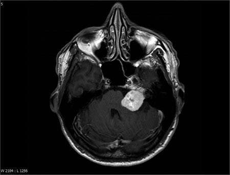 Figur 1. MR, T1 med gadolineum. Vestibularisschwannom i venstre cerebellopontine vinkel.