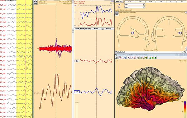 Figur 4. Sammendrag av analyser av skalp - EEG. Panelet til venstre viser bruk av romlig filter for bedre oppløsning av aktiviteten. Panelene til høyre viser to ulike metoder for å lokalisere aktivitet. Det øverste panelet viser dipoler, hvor modellen regner seg fram til det punktet som kan forklare registrert aktivitet. Det nederste panelet viser en regional løsning som beregner aktivt område på hjernens overflate. Metodene utfyller hverandre og brukes gjerne i parallell.
