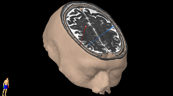 Figur 6. Planlagte trajektorier for innsetting av elektroder på grunnlag av pasientene aktuelle MR us og nevronavigasjonsserie.