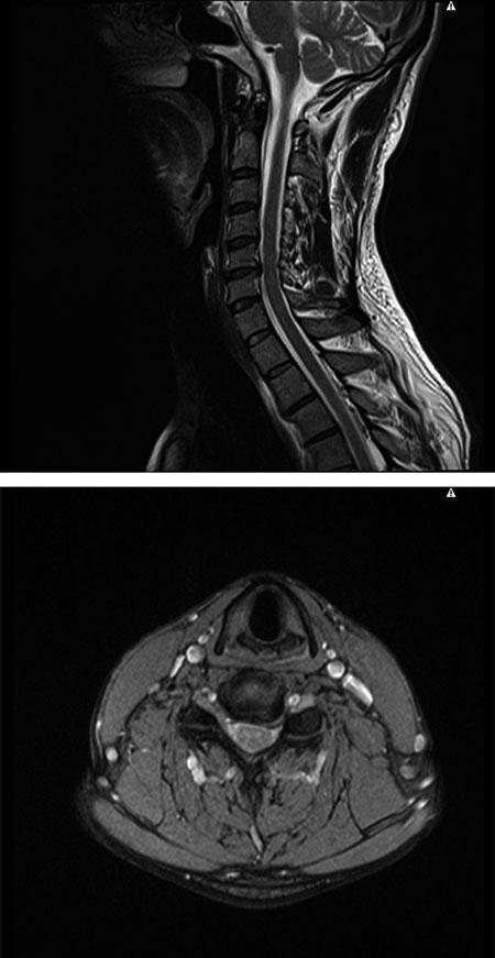 Figur 4: Saggitalt og axialt T2-vektet MR av nakken til en ung kvinne med intens venstresidig cervicobrakialgi med C6-rot preg sekundært til et venstrestillet prolaps i nivå C5/C6.