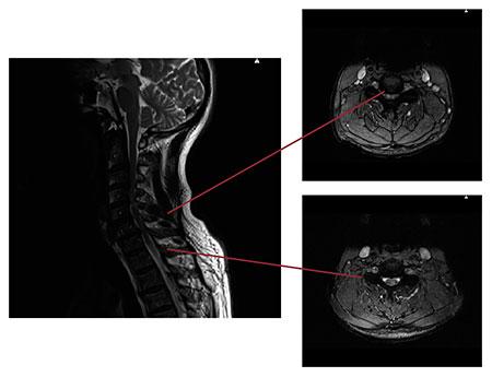 Figur 5: Saggitalt og axialt T2-vektet MR av nakken til en eldre mann med myelopati sekundært til cervical stenose. Øverste axial snitt er fra et trangt parti, mens nedre axial snitt er distalt for stenosen.