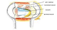 Fig. 3: Tegning av de intraspinale forholdene etter avsluttet dekompresjon med unilateral tilgang. Sett gjennom tube distraktoren. Legg merke til bevart proc spinosus og den gode visualiseringen av nerverot på kontralaterale side.