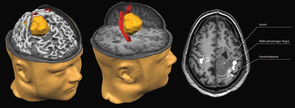 Figur 1, venstre og midtre del: Tredimensjonal modell av hjernens overflate med svulsten i oransje, fMRI-aktiveringer i det primære motoriske barkområdet fra bevegelse av fingrene i gult/oransje på hjernens overflate. Pyramidebanene er visualisert som røde fibere, her med deviasjon på grunn av svulsten. Høyre del: Et T1-vektet transversalt snittbilde med fMRI-aktiveringer som høyintense hvite områder og pyramidebanene som høyintense hvite omriss, slik nevrokirurgene har informasjonen ilgjenglig peroperativt. Erik Magnus Berntsen, Klinikk for bildediagnostikk, St. Olavs Hospital.