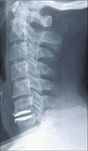 Figur 2: Eksempel på cervikal skiveprotese på nivå C6/C7