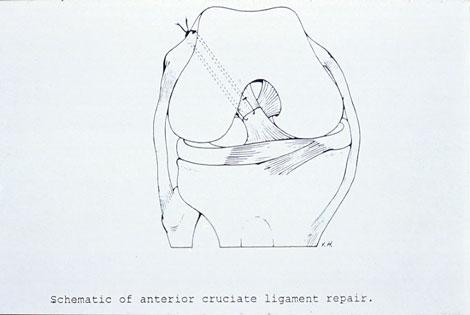 Figur 2. ACL sutur.