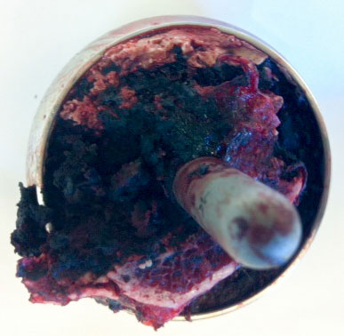 Bilde 3: Metallose i benvev. Revisjonspreparat.