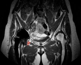 Bilde 5: MR-MARS. Pseudotumor (P) i høyre hofte.