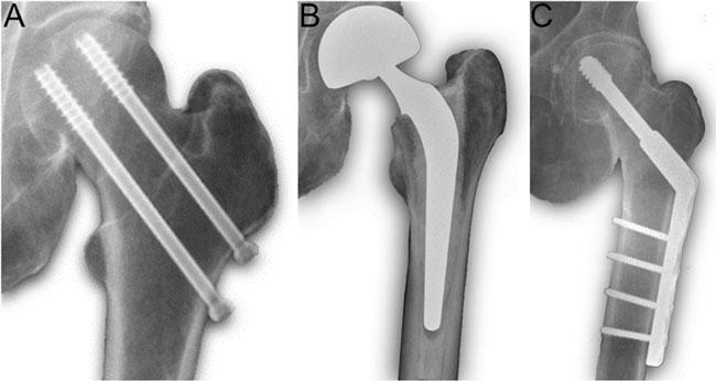 Figur 1. Eksempel på hoftebrudd med ulik operativ behandling. A Skrueosteosyntese av udislokert collumfraktur. B Hemiprotese av dislokert collumfraktur. C Plate- og glideskrue (Compression Hip Screw) av pertrochantær eller lateral collumfraktur.