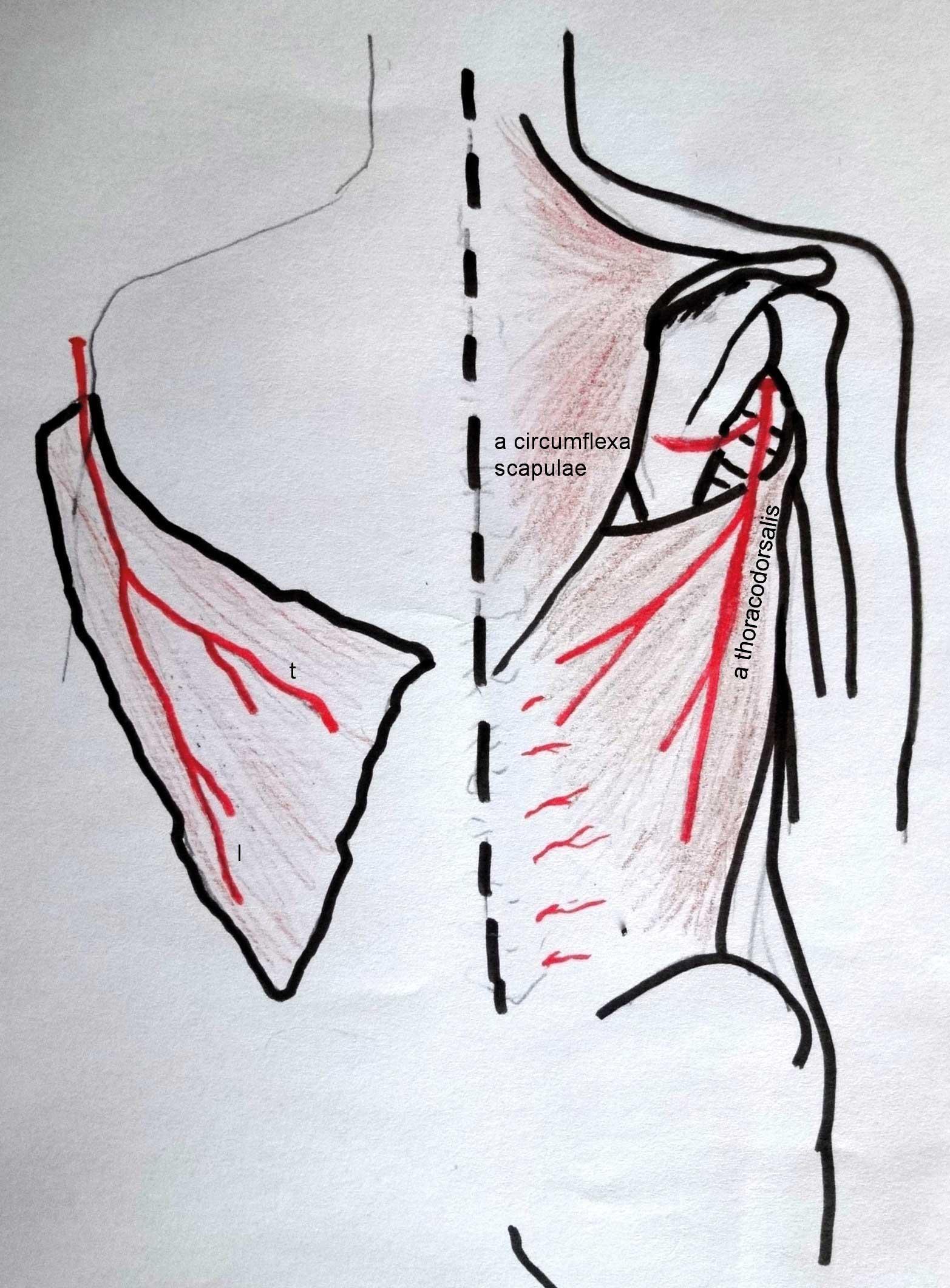 Figur 3. M. latissimus dorsi er mye brukt både som stilket og fri lapp. Den forsynes proximalt av a. thoracodorsalis går av fra a. subscapularis. Denne blodforsyningen kan forsyne hele muskelen, som kan løsnes både fra humerusfestet og fra ryggtaggene og crista. Stilket på arterien kan muskelen dreies til store deler av overekstremitet og thorax. Som fri lapp gir latissimus stort areal. Muskelen kan også deles på langs da a. thoracodorsalis deler seg i en lateral (l) og en transversal (t) del.