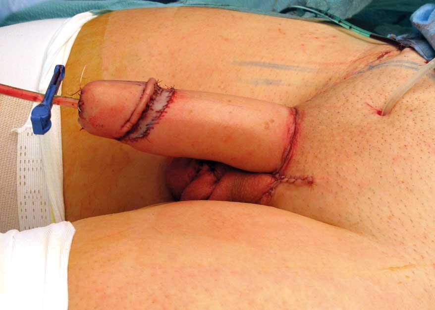Figur 3. Umiddelbart postoperativt resultat etter falloplastikk mikrovaskulær hudlapp fra underarm (radialis lapp). I dette tilfellet er urethra rekonstruert. Foto: Kim Alexander Tønseth.