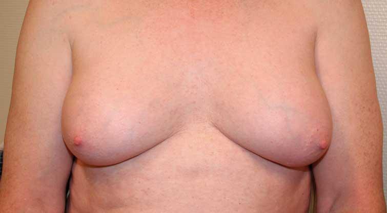 Figur 1. Klassifisering av gynekomasti a.m. Cordova. Grad 3: Hypertrofi av hele brystet, moderat hudoverskudd, areola er i samme høyde eller mindre enn 1 cm under submammærfuren.