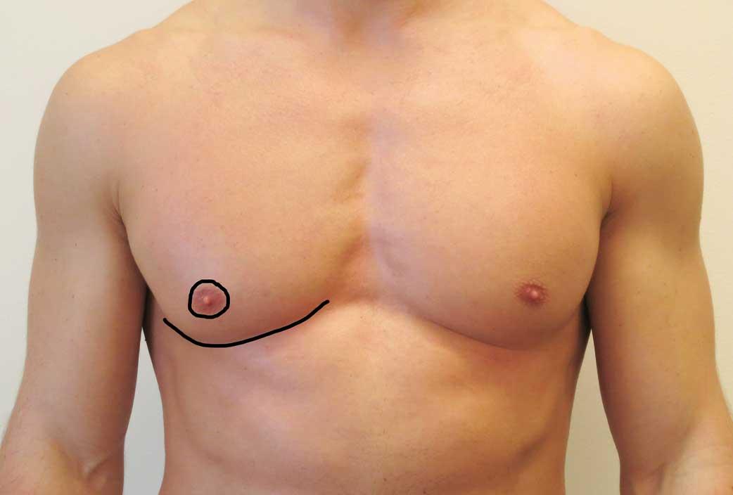 """Figur 2. De svarte linjene markerer """"de estetiske linjene"""" i en manns brystkasse. Arr utenfor dette, særlig ut i fra areolakanten blir som regel mindre akseptert. Legg også merke til den lave plasseringen av areola i forhold til submammærfuren."""