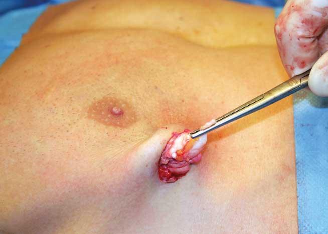 Figur 4. Utthenting av kjertelvev gjennom innstikksåpningen fra fettsuging er mer krevende, men sparer pasienten for et periareolært arr.