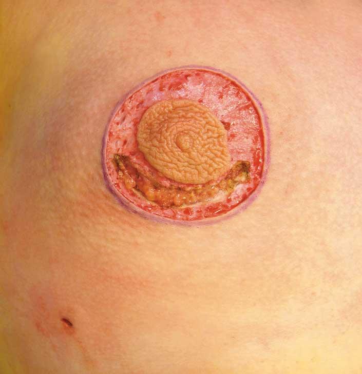 Figur 5. Ved uttalt gynekomasti kan det være behov for å eksidere hud. Her er tre bilder fra en operasjon hvor det ble gjort sirkulær hudeksisjon og subkutan mastektomi. Som det midtre bildet viser oppn&arin ;s en større tilgang ved denne metoden fremfor å gå i areolakanten. Det ses også en egen stikkåpning etter fettsuging. Lukning er gjort med fortløpende små suturer med vicryl rapid.