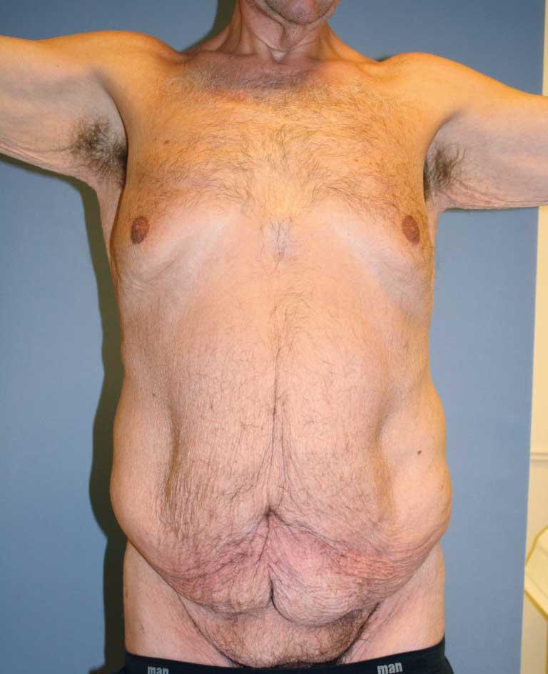 Bilde 1a. Preoperativt fotografi av 40 år gammel mann med 70 kg vekttap. Hudoverskudd både vertikalt og horisontalt med mons ptose.