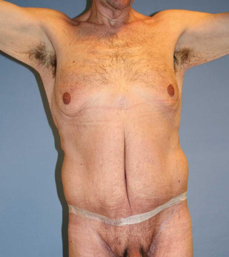 Bilde 1b. Resultat etter cirkumferensiell belteplastikk. Legg merke til dyp fure i midtlinje på bakgrunn av manglende korreksjon av vertikalt hudoverskudd.