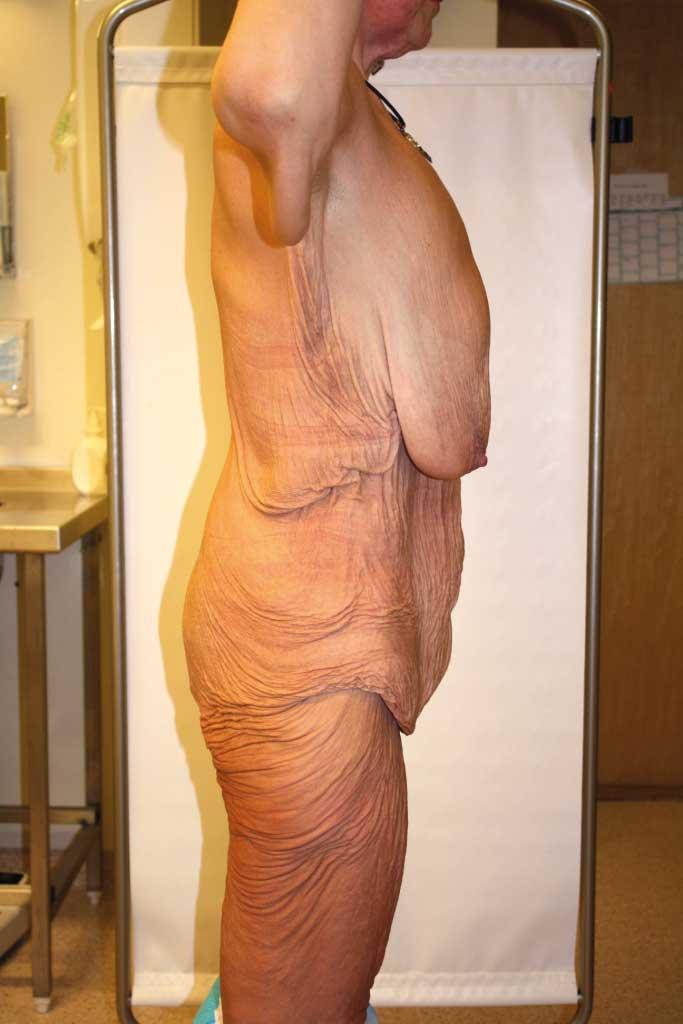 Bilde 2a og 2b. Preoperative fotografier av 39 år gammel kvinne med 70 kg vekttap. Betydelig hudoverskudd med behov for helkroppsreformering.
