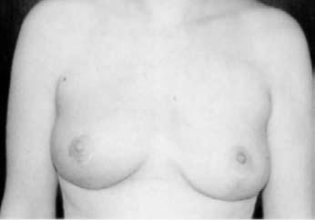 Bilde 1 D: Oncoplastik. Resultat etter endt kirurgisk behandling.