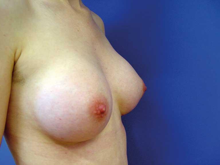 Bilde 2b. Kvinne 26 år, etter operasjon (5 mnd) med 210g runde.