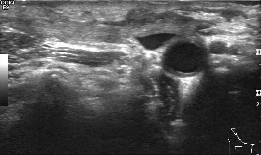 Her tas cyt av samme knuten. Nålen fyller mye av metastasen som bare er et par mm stor. Bilde utlånt av Overlege Olav Inge Håskjold, Røntgenavdelingen Radiumhospitalet.