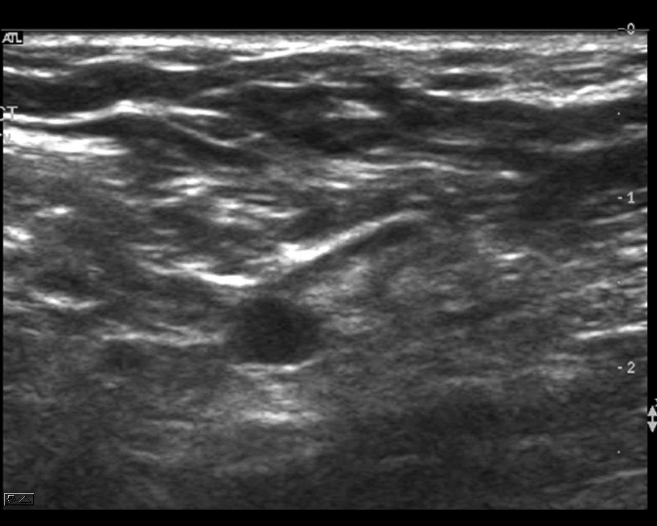 Ca 3 mm metastase i enden av en ellers normal lymfeknute i axille. Litt dårlig bilde med gammelt apparat. Bilde utlånt av Overlege Olav Inge Håskjold, Røntgenavdelingen Radiumhospitalet.