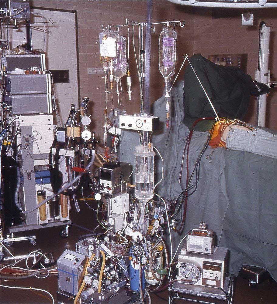 Oppsett til ILP med hjerte-lunge maskin.