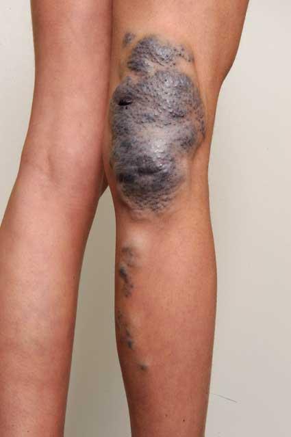Bilde 3. 16 år gammel pasient med venøs malformasjon i hø knehase.