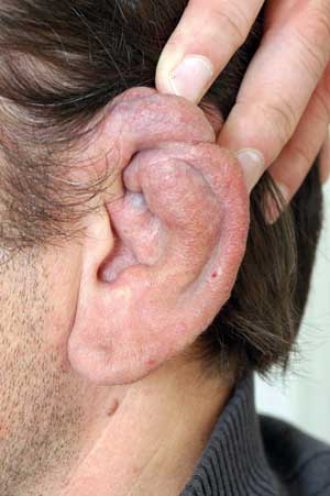 Bilde 10. Pasient med arteriovenøs malformasjon på øret.