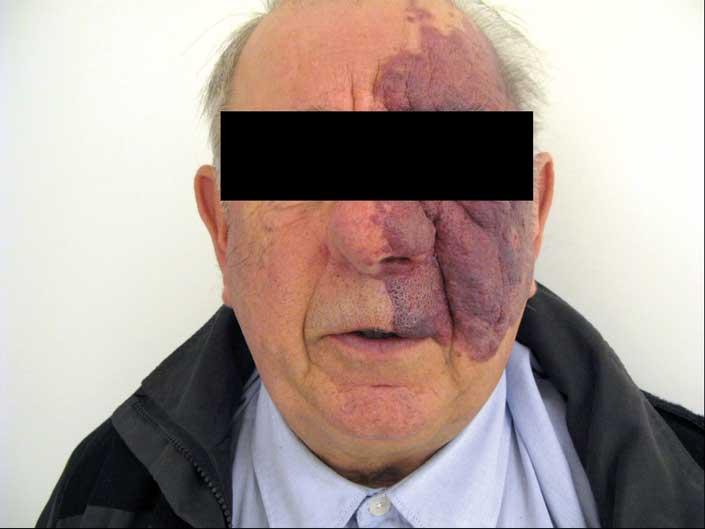 Bilde 12. Pasient med kapillær malformasjon.