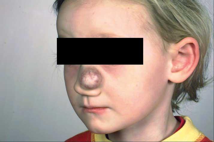 Bilde 2. 4 år gammel jente med infantilt hemangiom på nesen.