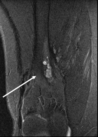 Bilde 6. MR etter skleroterapi viser rest av venøs malformasjon.