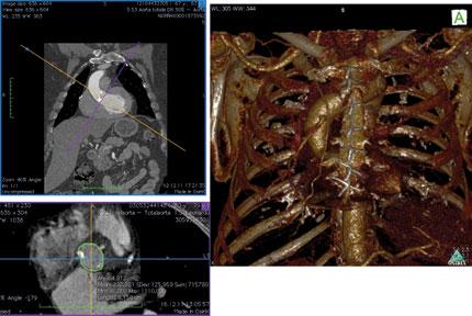 Figur 11. Eksempel på bearbeidelse av CT bilder for TAVI prosedyre Ved bruk av software OsiriX for Mac kan man konstruere CT bildene for måling av annulus diameter, leie av aorta og form på femoralkar ved hjelp av ulike 3D rekonstruksjoner. Her er eksempel på leie og vinkel på aorta.