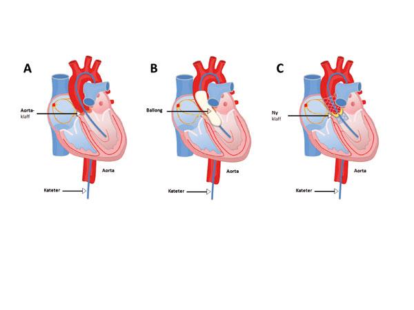 Figur 2. Prinsipp for kateterklaff behandling A) Det føres en vaier inn gjennom aortaklaffen, antegrad eller retrograd. Denne skiftes ut med en stiv vaier slik at ballong og system som føres inn har noe å støtte seg på. B) En ballong med saltvann med kontrastvæske føres inn over den stive vaieren og blåses opp inne i aortaklaffen under gjennomlysning og rask ventrikkelpacing. C) Til slutt føres en krympet kateterklaff inn over den stive vaieren og selvekspanderes eller ekspanderes med en ballong. Dette gjøres under gjennomlysning og evt. transøsofageal ekko veiledning. (Figurer laget av Michael Bjaanes, tillatt brukt).