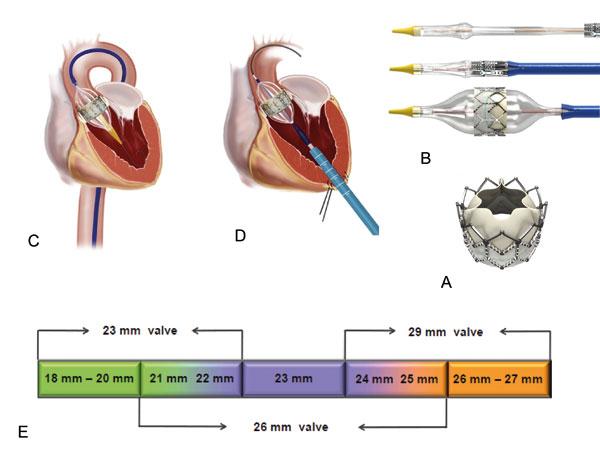 Figur 4. Edwards SAPIEN systemet. Edwards SAPIEN klaffen (A) ballongekspanderes når den kommer på plass i aortaklaffen (B). Den kan settes inn via lysken (C) eller via hjerteapeks (D), evt transaortalt og finnes i 3 størrelser (E). Gjengitt med tillatelse fra Edwards.