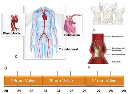 Figur 5. CoreValve systemet. Den selvekspanderbare grise klaffen i nitinolstent (A) har en høyere profil enn Edwards klaffen (B). Den kan introduseres via femoralkar, subklavia eller aorta (C). Den finnes i tre størrelser (D). Gjengitt med tillatelse fra Medtronic.