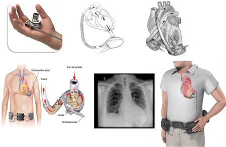 Figur 2: Left Ventricular Assist Device (LVAD) benyttet ved Rikshospitalet (2012). Pumpen sys direkte på apeks med en kanyle inn i venstre ventrikkel. Pumpen fører blodet opp gjennom et graft til aorta ascendens. Fra LVAD går det en tynn strømledning ned til en datakonsoll som bæres rundt livet. Pumpen kan også brukes på høyre side av hjertet, eller på begge sider.
