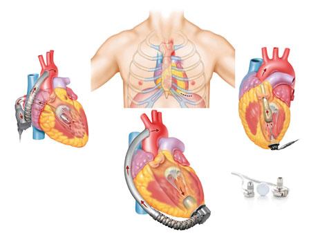 Figur 3: Nye og mindre Left Ventricular Assist Device (LVAD-pumper) gir mulighet for minimal invasiv kirurgi med utvidet bruk, også hos barn.