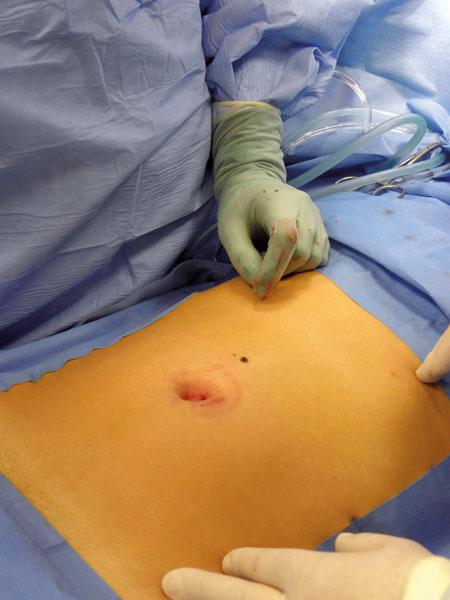 Figur 1: Tilgang ved appendektomi ved avsluttet operasjon. Incisjonen ligger innenfor navlens begrensning.